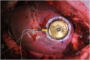 Batteryless Pacemaker